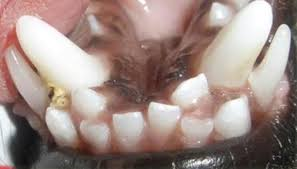 deformidad dental